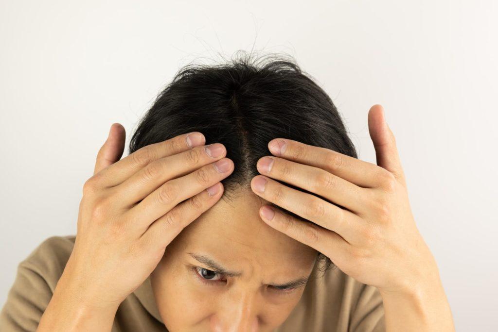 抜け毛が起きる原因